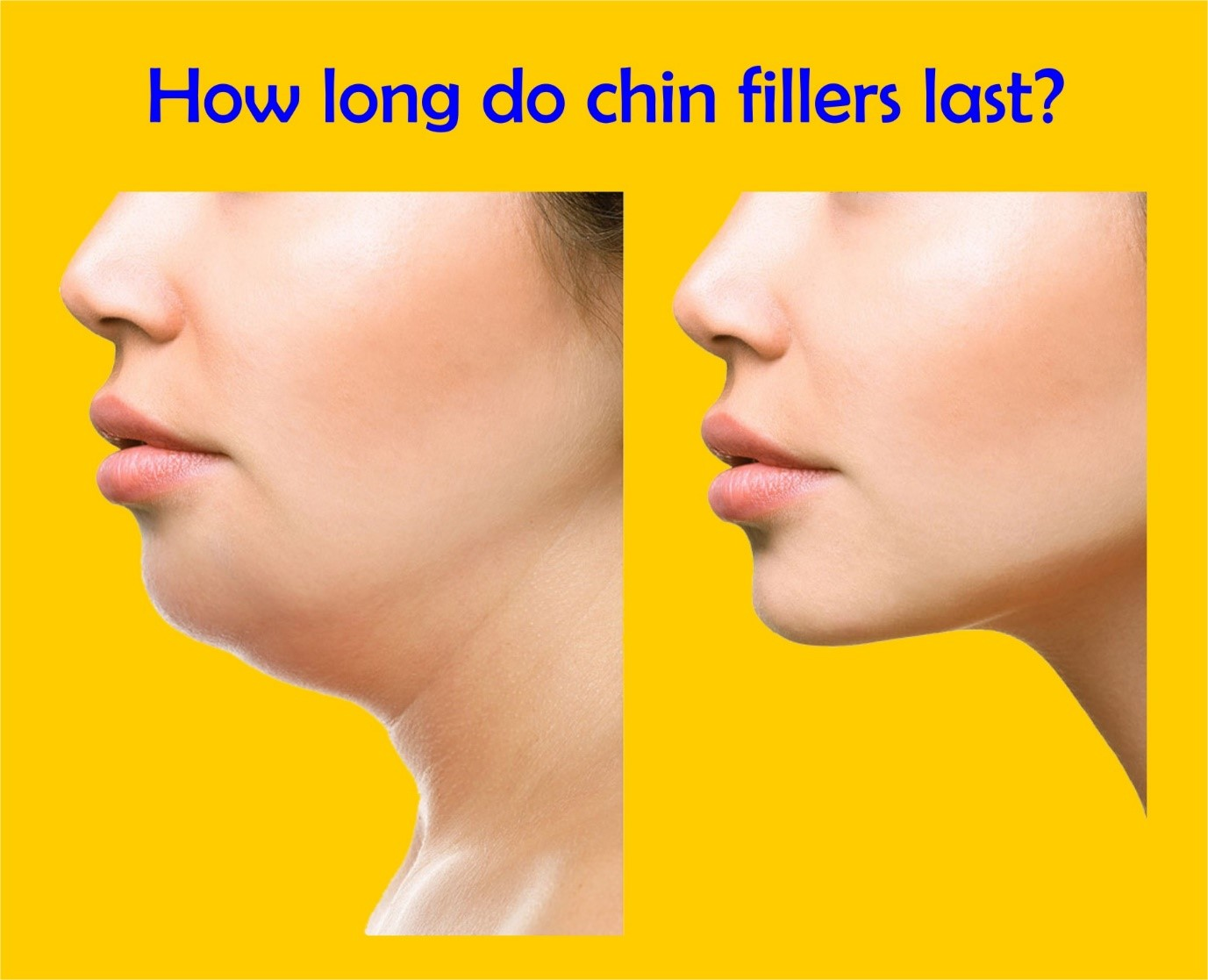 How long do chin fillers last