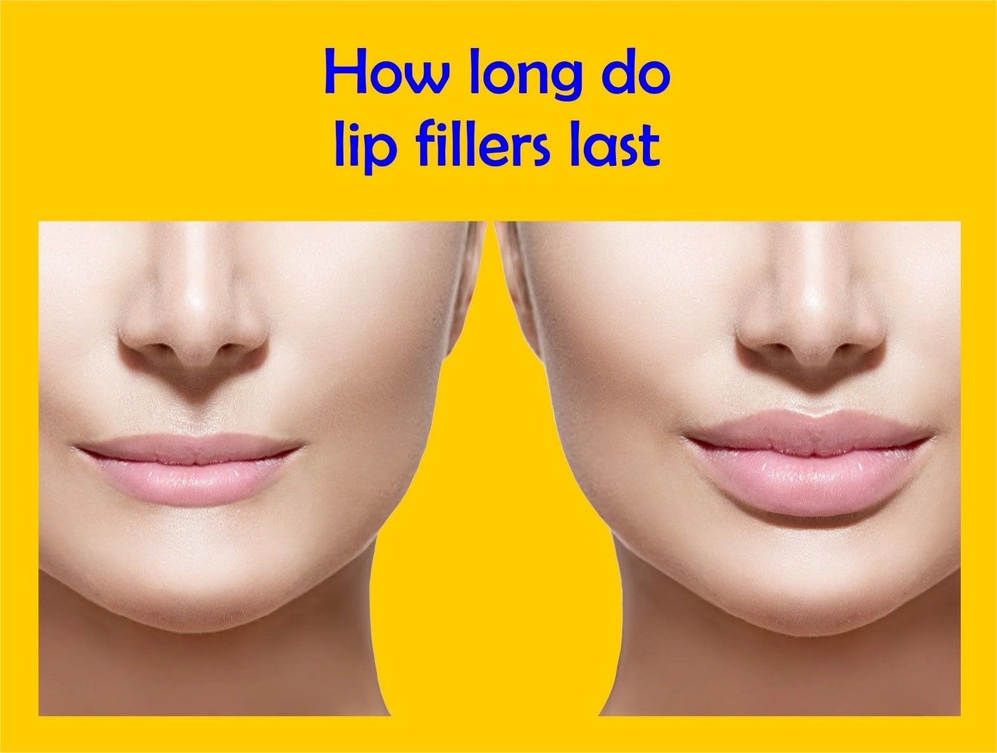 How long do lips fillers last