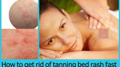 How to get rid of tanning bed rash fast (1)