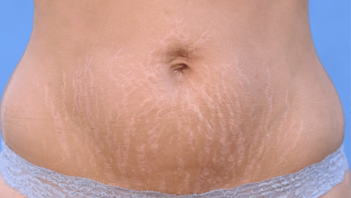 Does spray tanning cover stretch marks