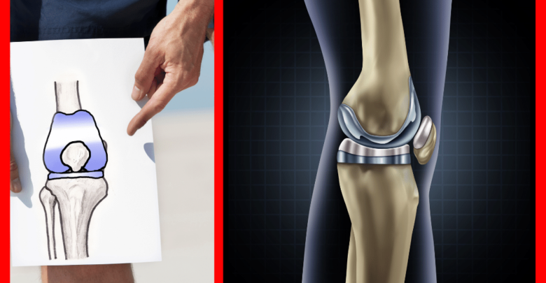 how long does the pain last after knee replacement